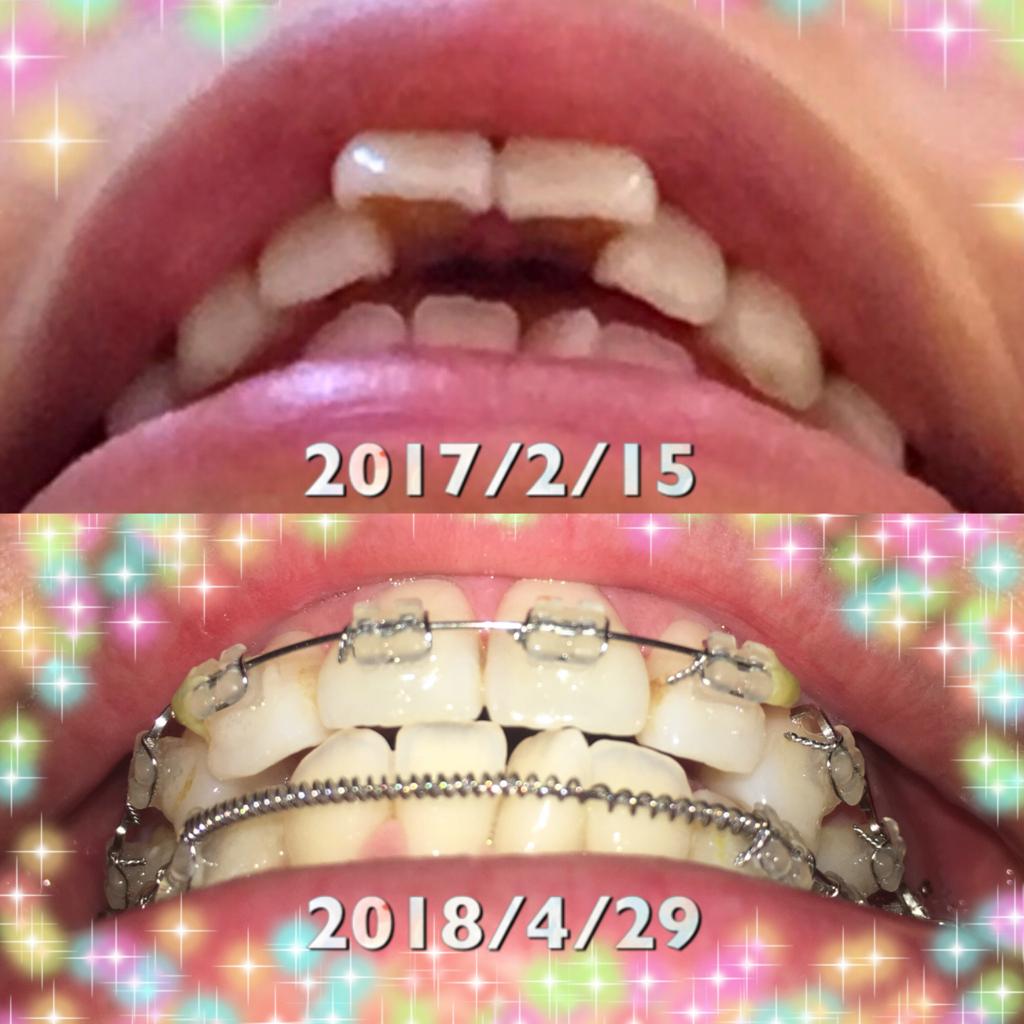 f:id:toothdiary:20180803182319j:plain