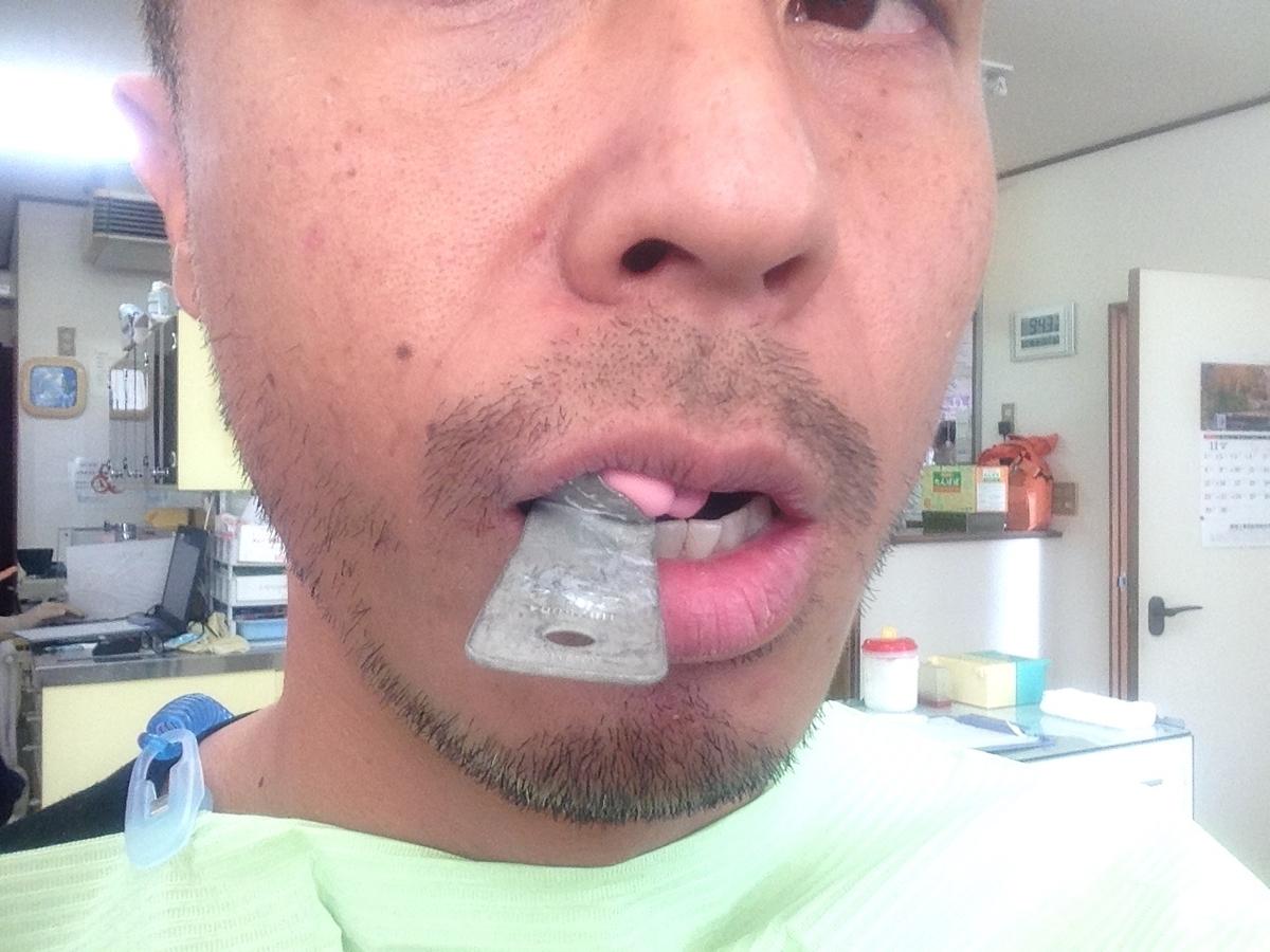 右上の歯の型をとってる写真