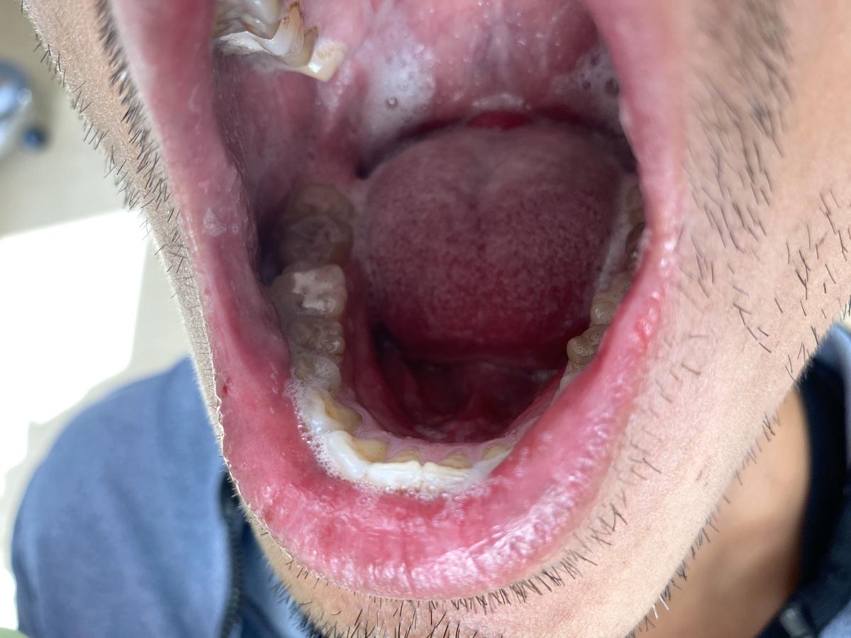 銀歯を削って詰め物をした状態の写真