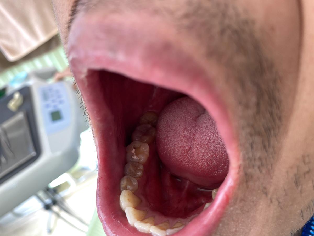 詰め物を外しこれから金歯を入れる直前の状態の写真