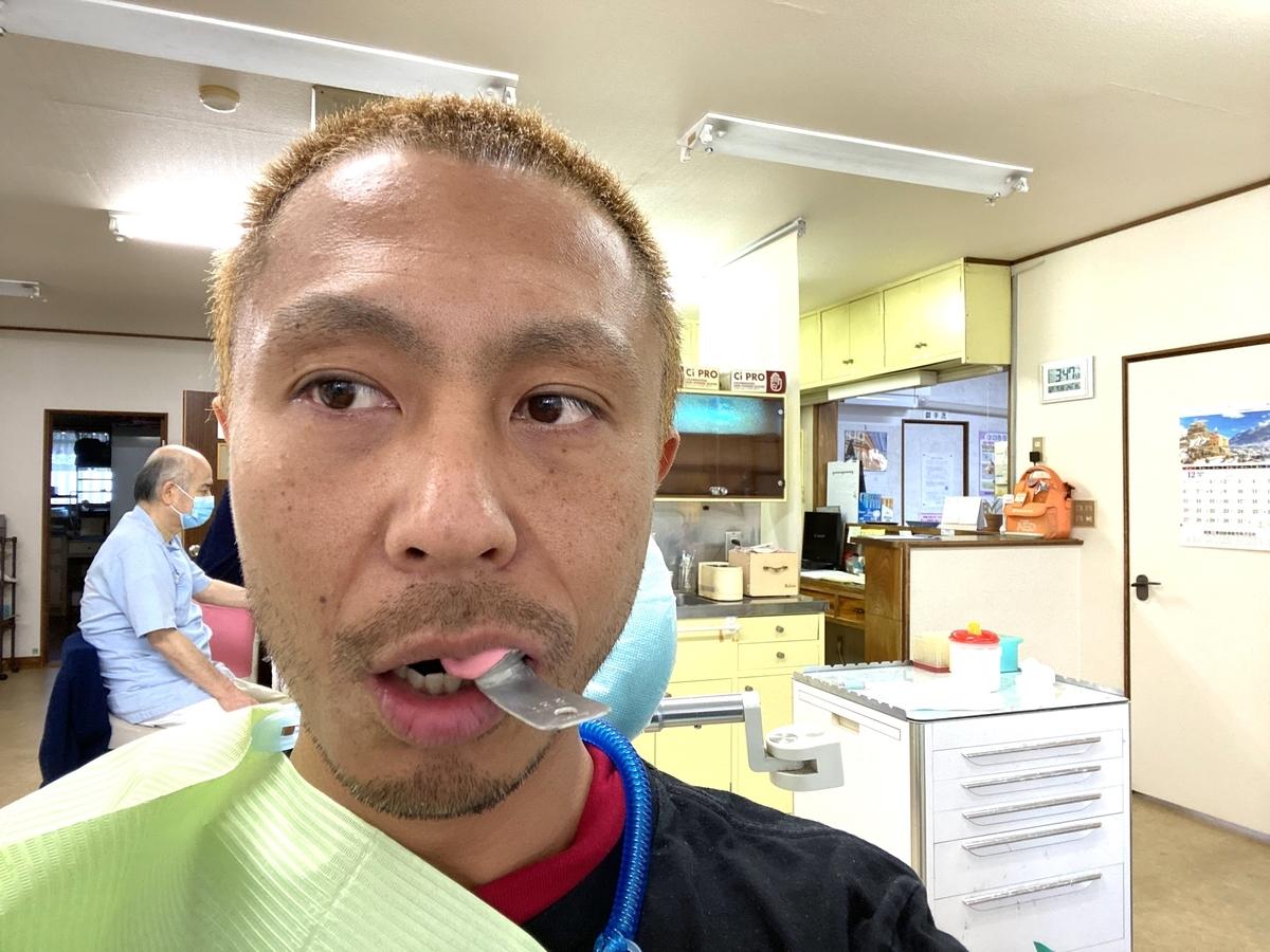 左上金歯の型取り写真