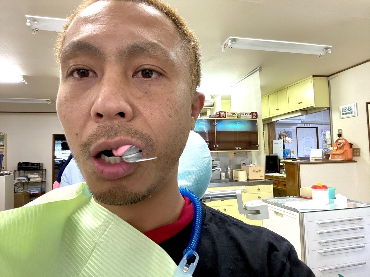 左下金歯の型取り写真