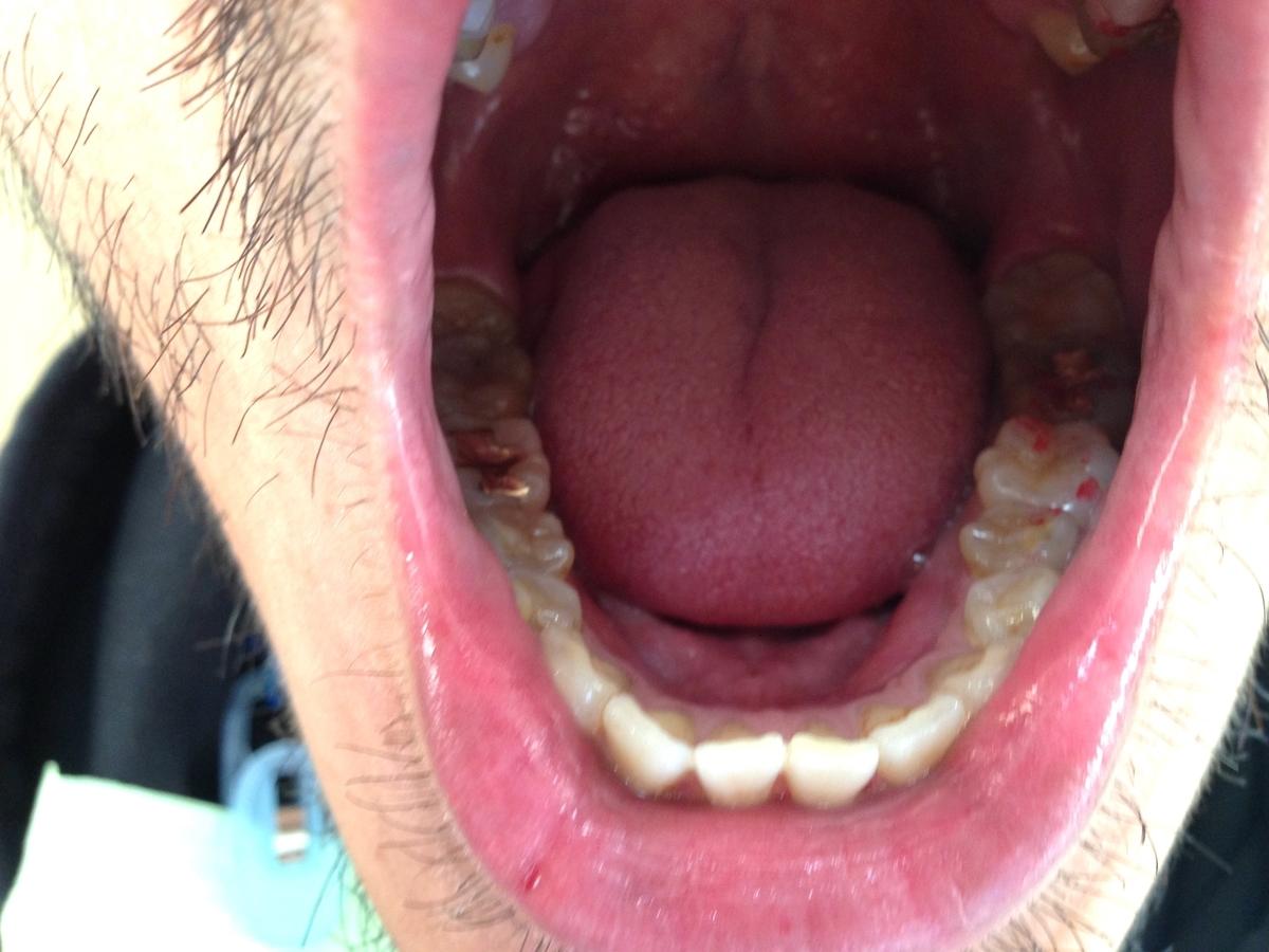 金歯にしてから一週間1