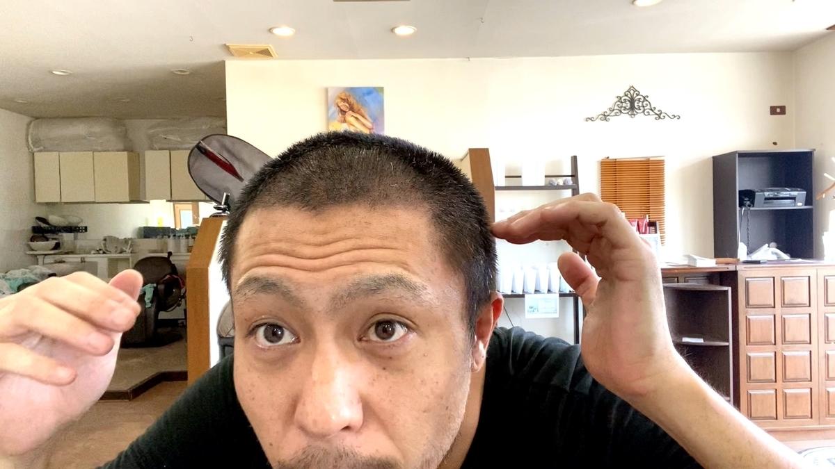 【初期段階の薄毛ハゲ坊主が12mm坊主に】薄毛ハゲは坊主が似合う!