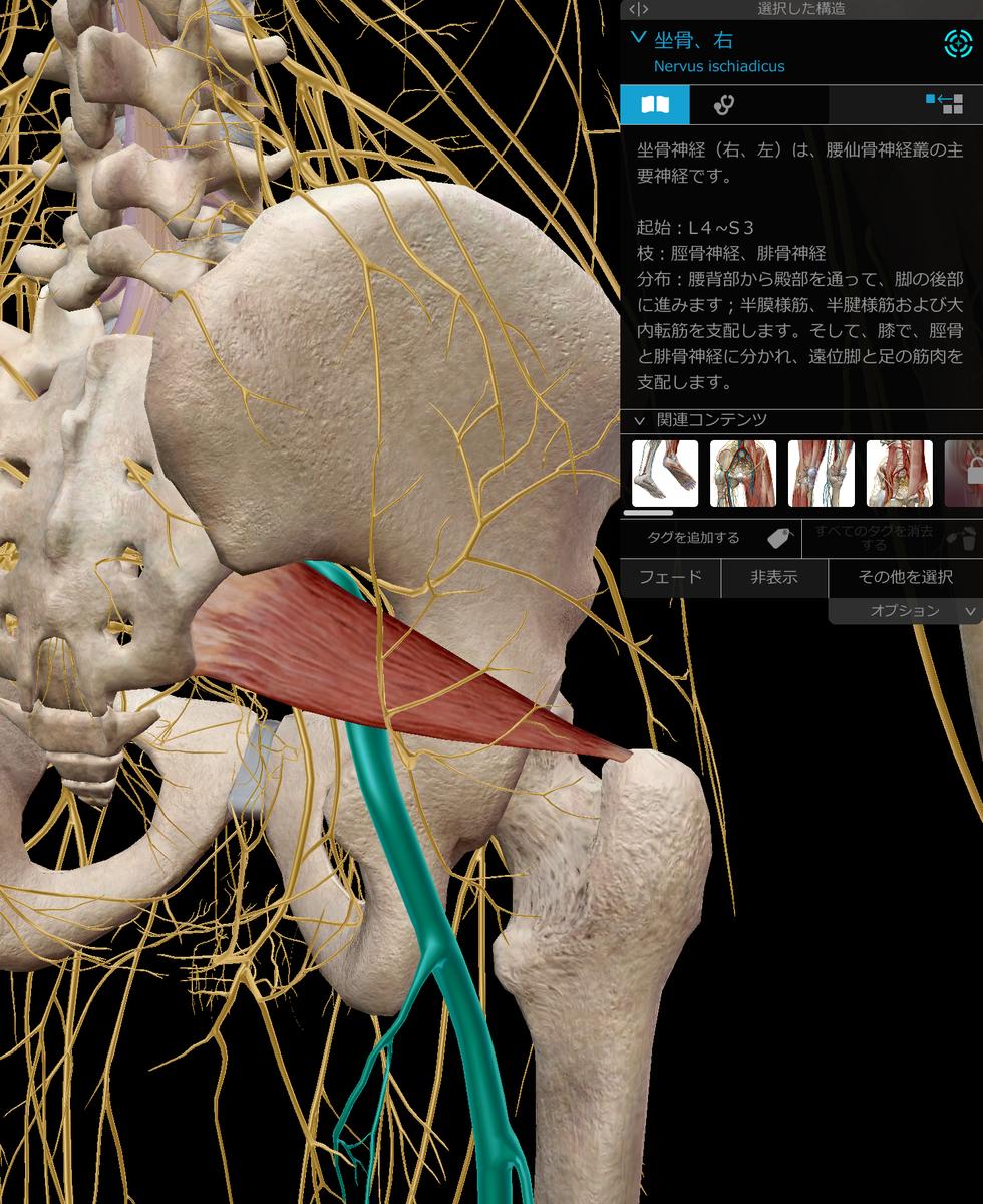 梨状筋と坐骨神経の画像