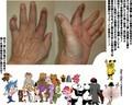 転んで突き指の腫れた手写真公開