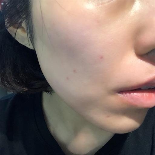 f:id:toxic-chia:20190729105448j:image