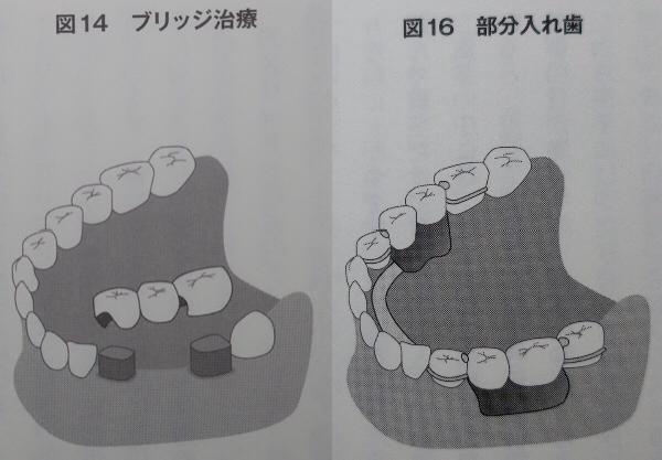 ブリッジと部分入れ歯の違い