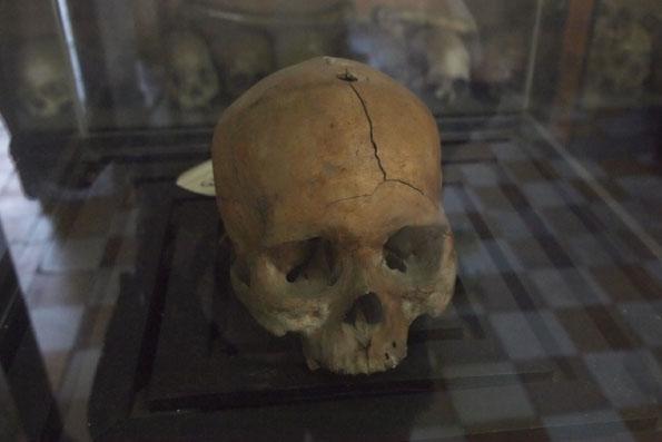 穴があいた頭蓋骨