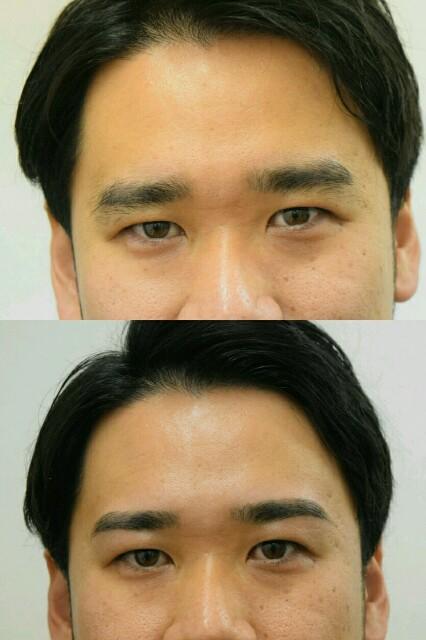f:id:tsubasa-shinya:20180304205641j:image