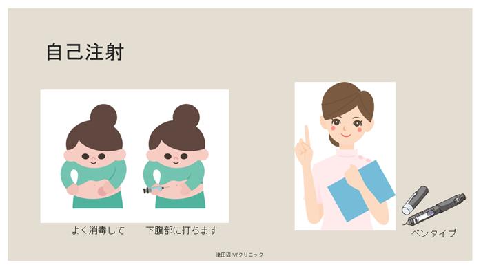 f:id:tsudanuma_ivf_clinic:20210414132402p:plain