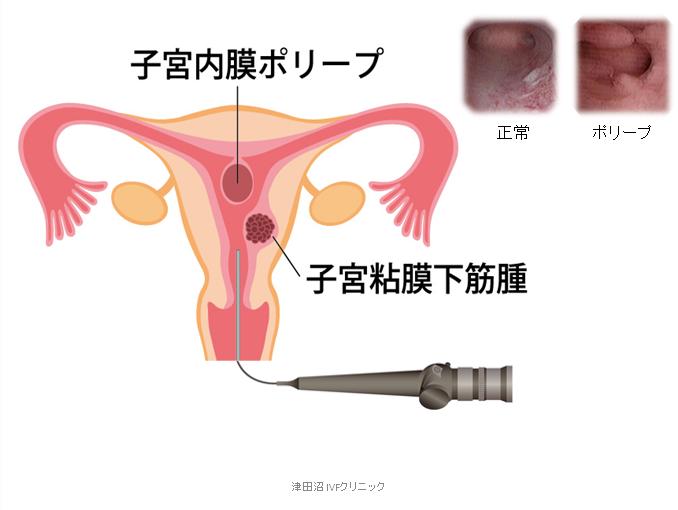 f:id:tsudanuma_ivf_clinic:20210414150429p:plain