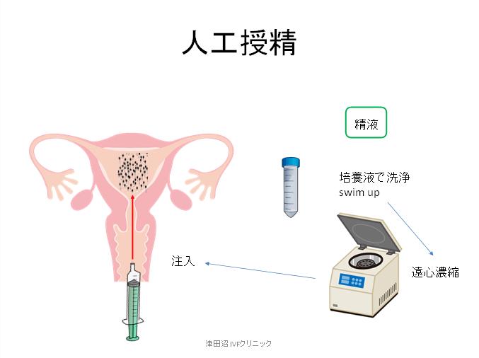 f:id:tsudanuma_ivf_clinic:20210414151405p:plain