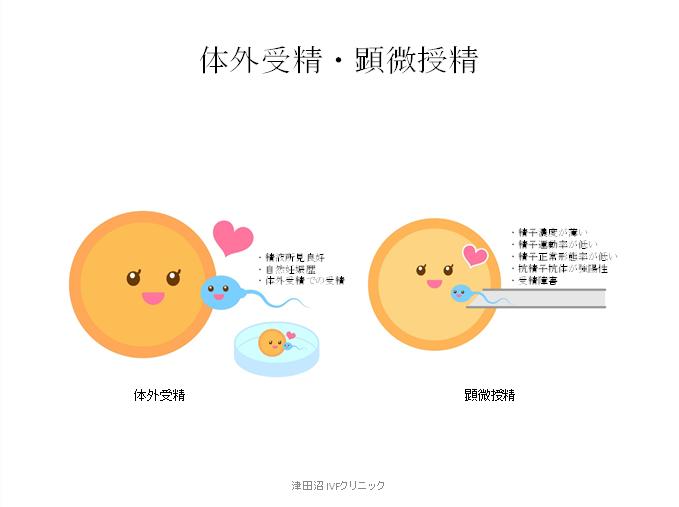 f:id:tsudanuma_ivf_clinic:20210414151545p:plain