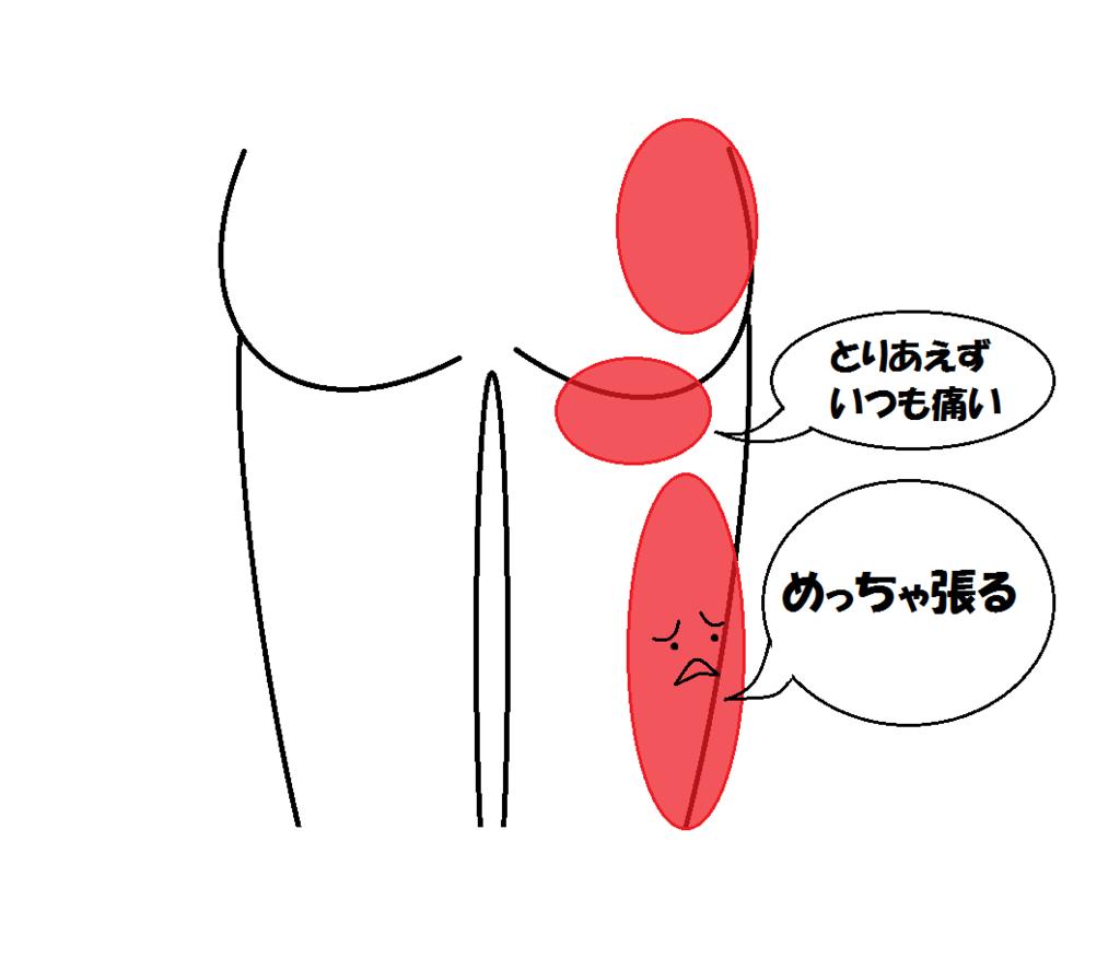 f:id:tsuikannashiko:20170509232036p:plain