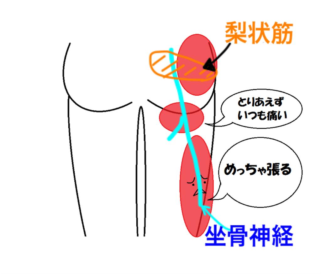 f:id:tsuikannashiko:20170628234552p:image
