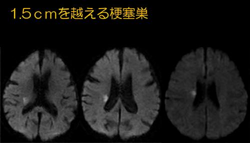 f:id:tsukasaseikatsu:20170210131854p:plain