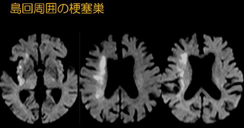 f:id:tsukasaseikatsu:20170210132304p:plain