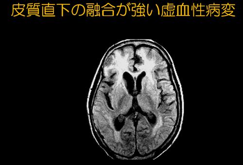 f:id:tsukasaseikatsu:20170210132335p:plain