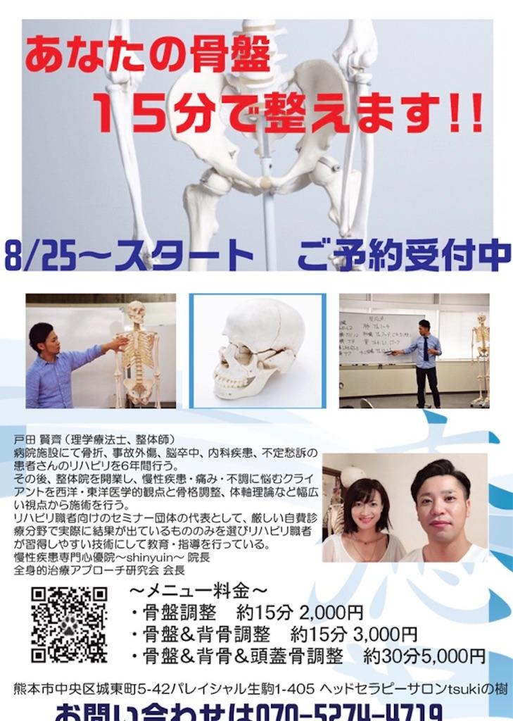f:id:tsukinoki20150127:20180816155758j:image