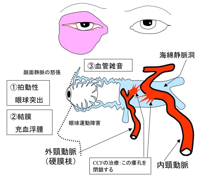 「内頚動脈海綿静脈洞瘻」の画像検索結果
