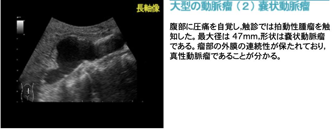 f:id:tsunepi:20201005162349p:plain