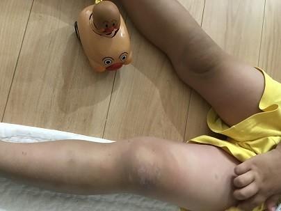 膝が左右で色が違う時の写真
