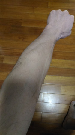 2016年12月11日(2回目のレーザー脱毛から2ヶ月経過)