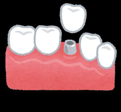 大人 乳歯 30代 40代 50代 ストレス 歯周病 理由 生え変わり 残す ケア 方法 歯医者 先天性欠如 子ども 気を付ける