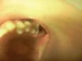 虫歯、なう? 写真付きなので、だれか虫歯か見て?