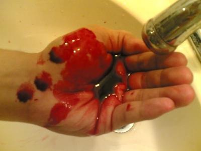 鼻血がまた…
