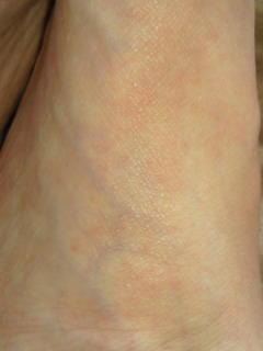 おはよう。足の横アーチが痒いー!良く見たら赤い点々……水虫?