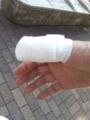 旦那さまがスライサーで指をえぐった…。救急でせんぽ高輪病院へ行っ