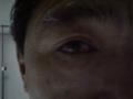うるうる眼だぁ。 #lasik