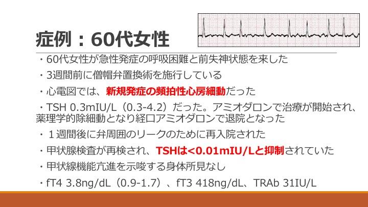 f:id:tyabu7973:20170219213609j:plain