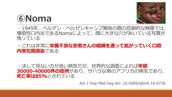 f:id:tyabu7973:20170226011328j:plain