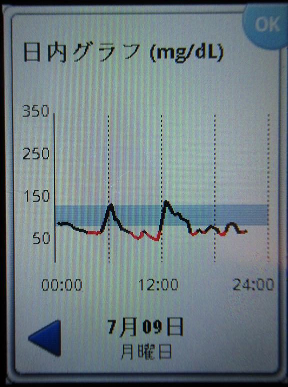 f:id:type1diabetes:20180709214701j:plain
