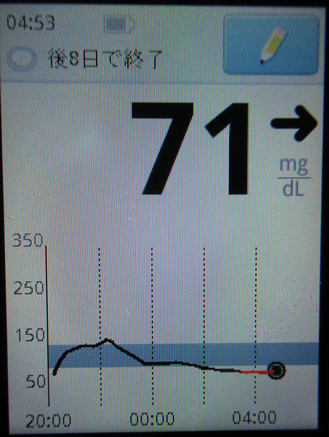 f:id:type1diabetes:20180709214819j:plain