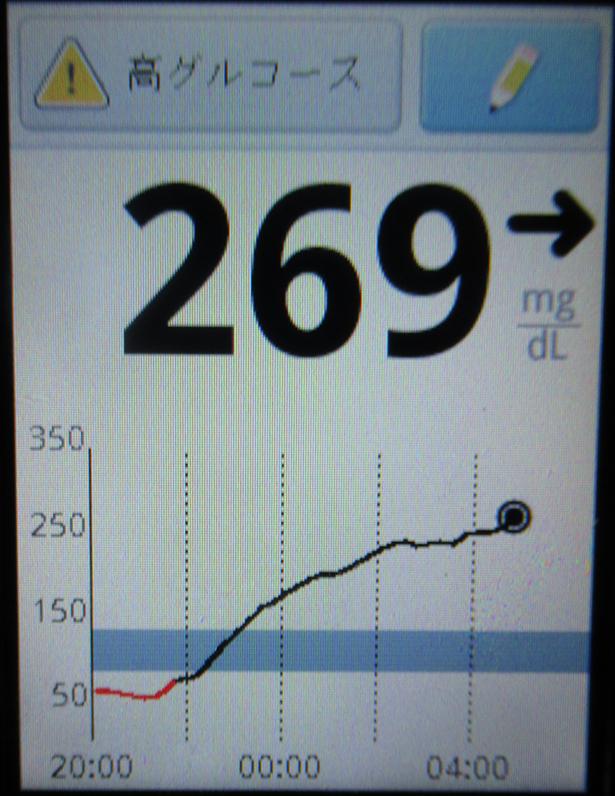 f:id:type1diabetes:20180712213106j:plain