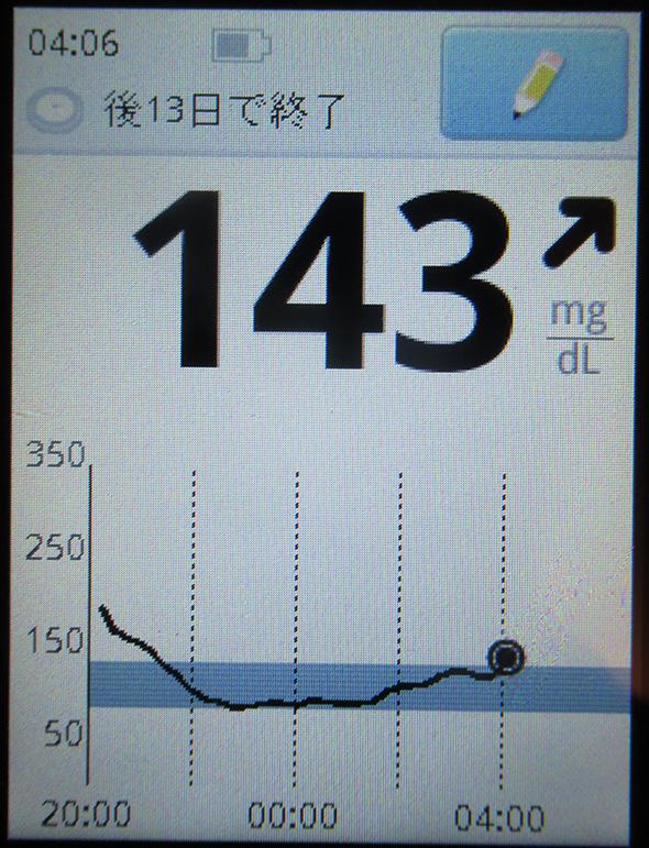 f:id:type1diabetes:20180720111308j:plain