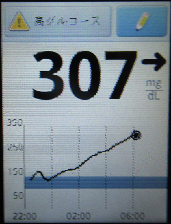 f:id:type1diabetes:20180804065951j:plain