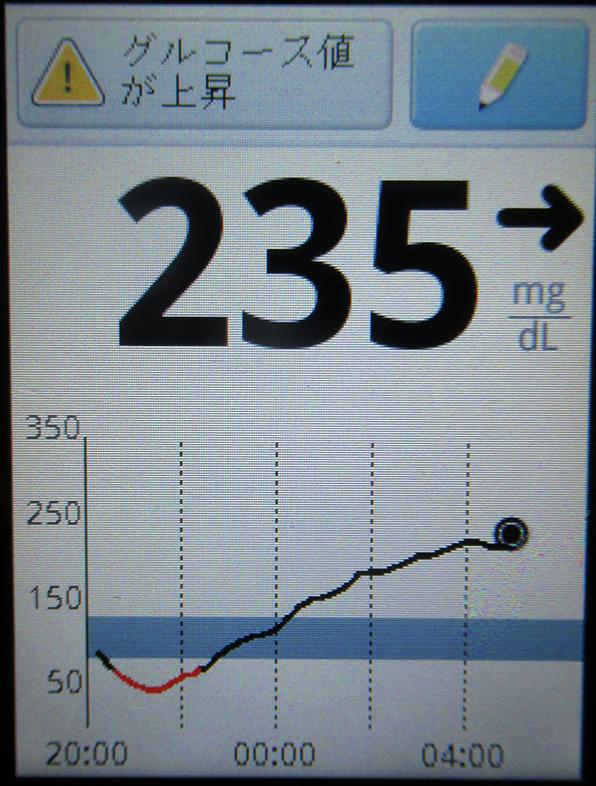 f:id:type1diabetes:20180808103255j:plain