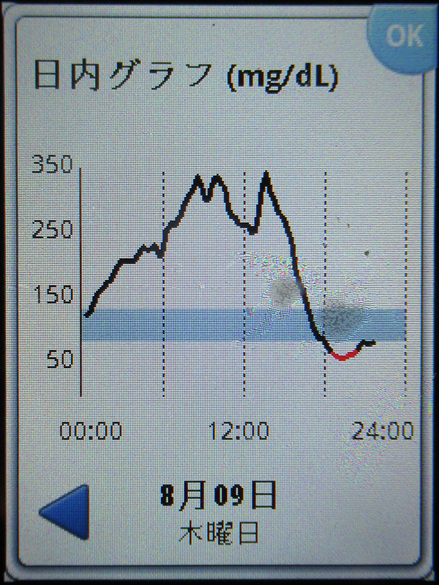 f:id:type1diabetes:20180809220406j:plain