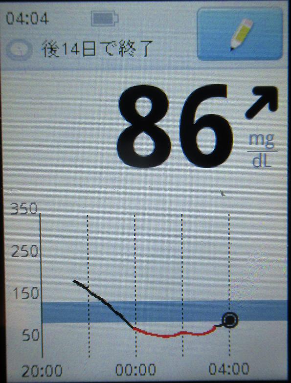 f:id:type1diabetes:20180821131718j:plain