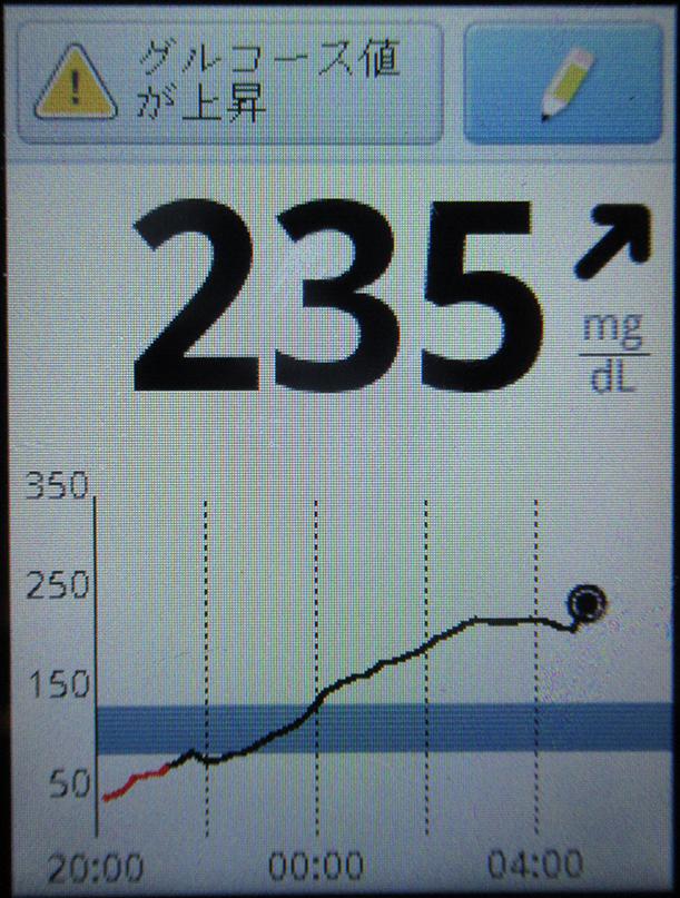 f:id:type1diabetes:20180830110956j:plain