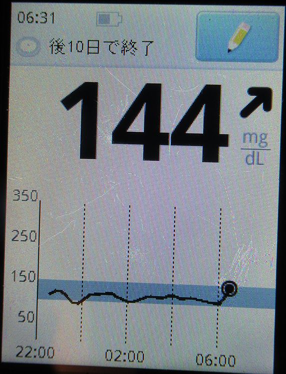 f:id:type1diabetes:20190112133019j:plain