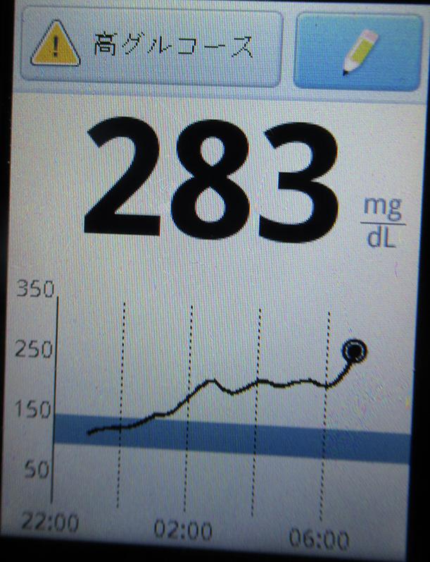 f:id:type1diabetes:20190119073906j:plain
