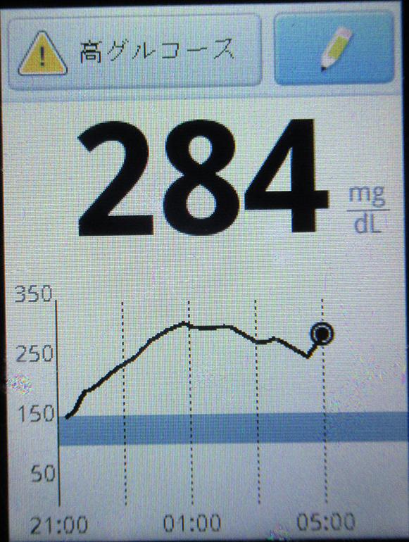 f:id:type1diabetes:20190207102616j:plain