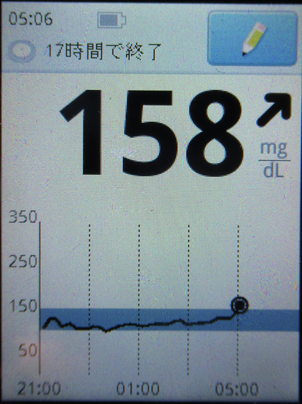 f:id:type1diabetes:20190218105103j:plain