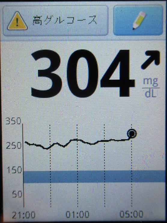 f:id:type1diabetes:20190226134706j:plain
